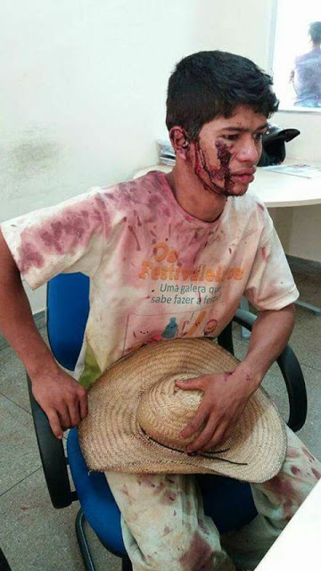 Vale espanca e tortura trabalhadores rurais e culpa vítimas pelas agressões